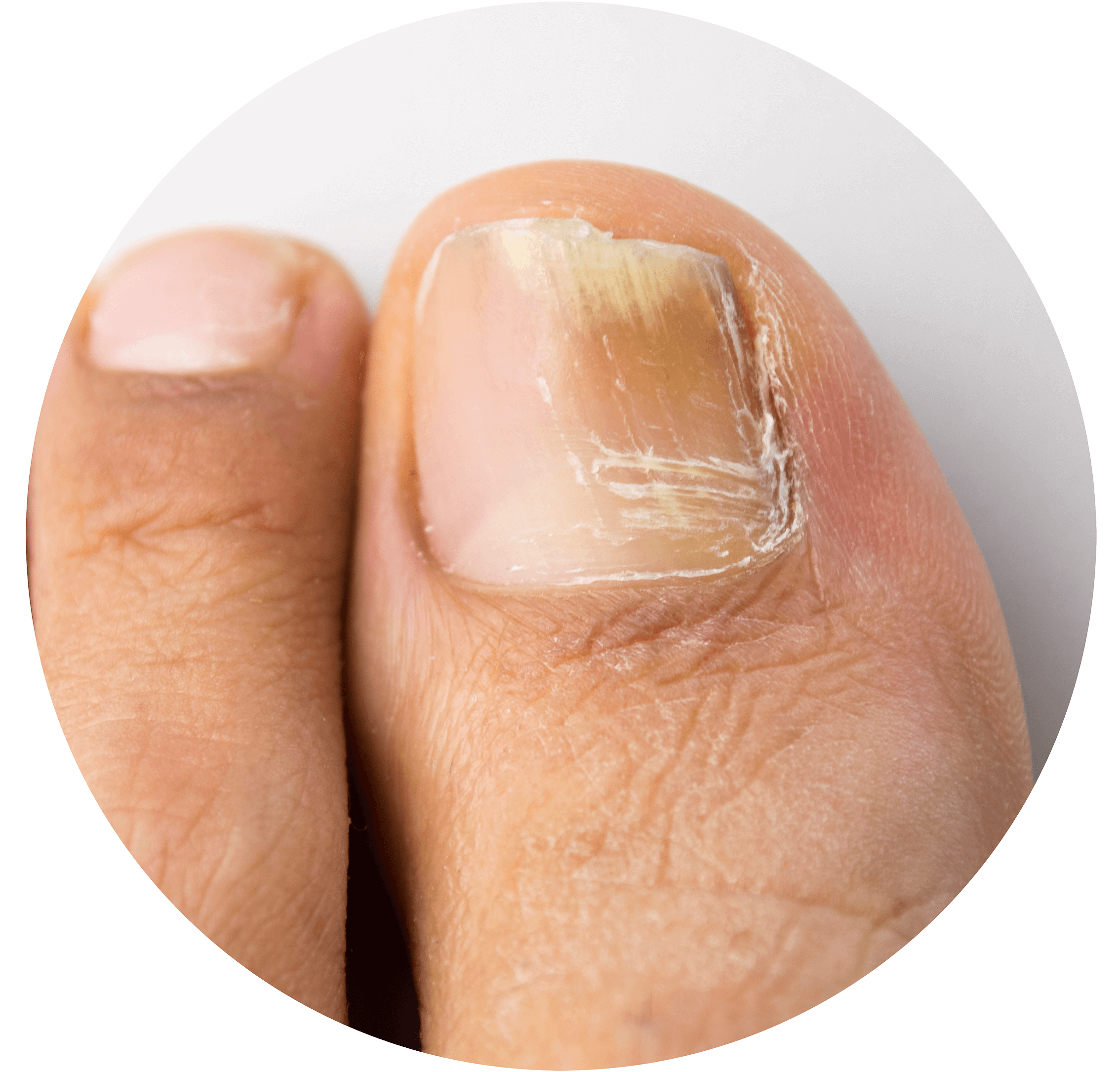 Common Foot Conditions   Leicester Podiatry Centre